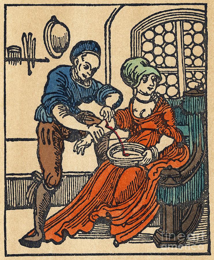 bloodletting-16th-century-granger